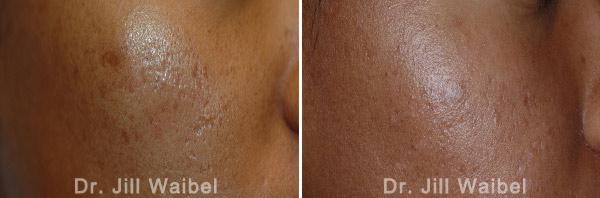 ACNE SCARS - Before and After Treatment Photos - face (oblique view)