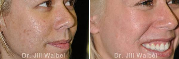 ACNE SCARS - Before and After Treatment Photos - face (female, oblique view)