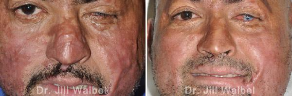 BURN SCARS - Before and After Treatment Photos: male (face, frontal view)