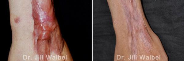 BURN SCARS - Before and After Treatment Photos: hand