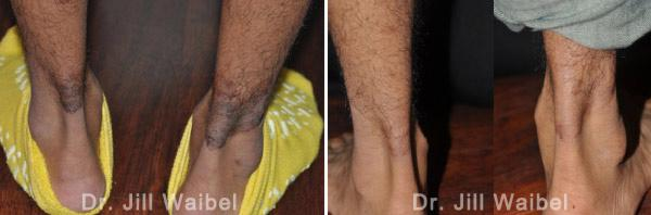 BURN SCARS: Before and After Treatment Photos - male (legs, back view)