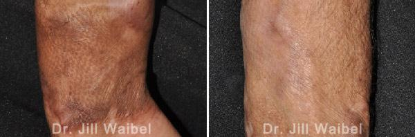 BURN SCARS: Before and After Treatment Photos