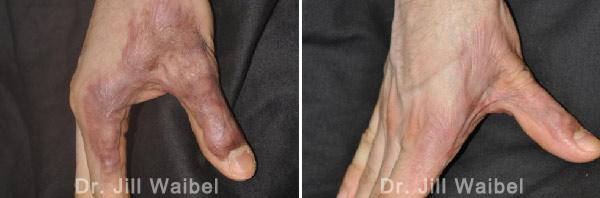 BURN SCARS: Before and After Treatment Photos - hand