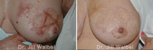 BURN SCARS - Before and After Treatment Photos: female (breast, frontal view)