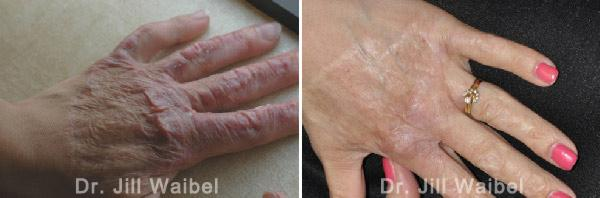 BURN SCARS: Before and After Treatment Photos - female (hand)