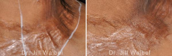 BURN SCARS: Before and After Treatment Photos - neck