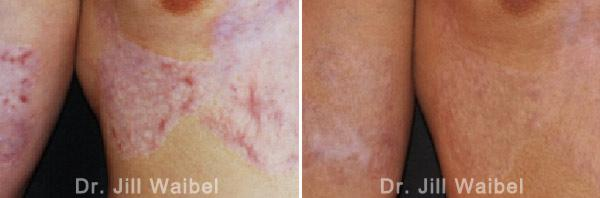 BURN SCARS: Before and After Treatment Photos - body