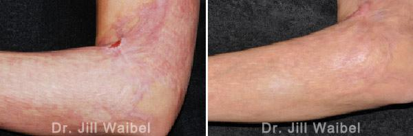 BURN SCARS. Before and After Treatment Photos - hand