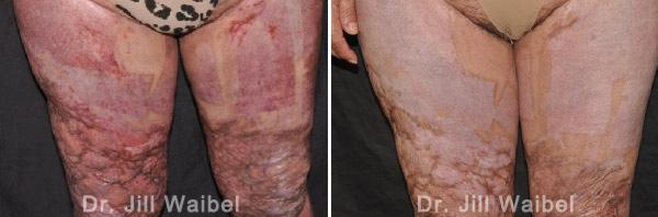 BURN SCARS. Before and After Treatment Photos - female (legs)