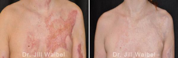 BURN SCARS - Before and After Treatment Photos: female (frontal view)
