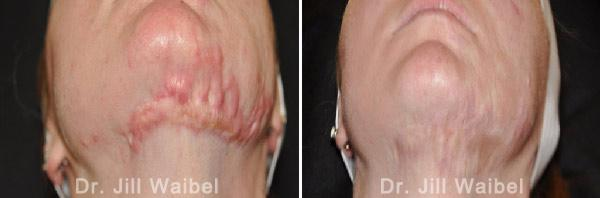 BURN SCARS - Before and After Treatment Photos: female (neck, bottom view)