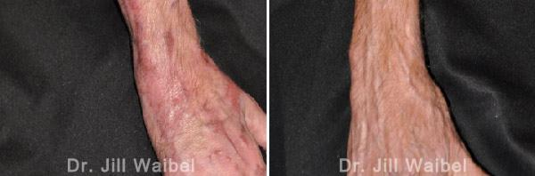BURN SCARS - Before and After Treatment Photos: male (hand, top view)