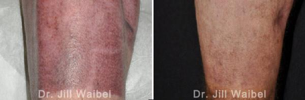 BURN SCARS - Before and After Treatment Photos: leg