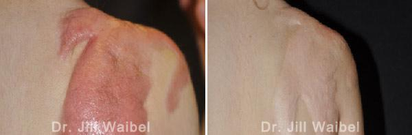 BURN SCARS - Before and After Treatment Photos: shoulder
