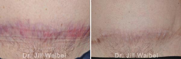 SURGICAL AND COSMETIC SCARS - Before and After Treatments Photos: tuck