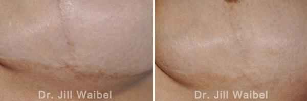 SURGICAL AND COSMETIC SCARS - Before and After Treatments Photos - tuck