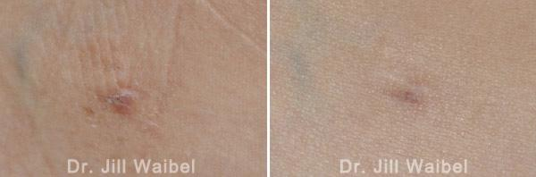 SURGICAL AND COSMETIC SCARS - Before and After Treatments Photos