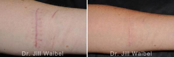 SURGICAL  AND COSMETIC SCARS. Before and After Treatments Photos: hand