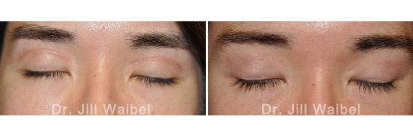 SURGICAL AND COSMETIC SCARS - Before and After Treatments Photos: female (eyelids)