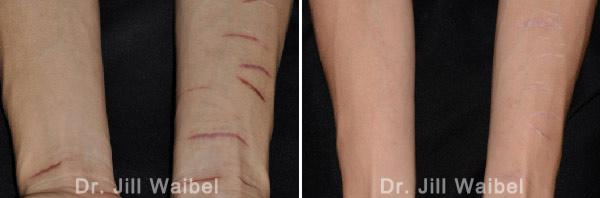 SURGICAL AND COSMETIC SCARS. Before and After Treatments Photos: hands
