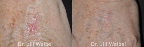 SURGICAL AND COSMETIC SCARS - Before and After Treatments Photos: hand