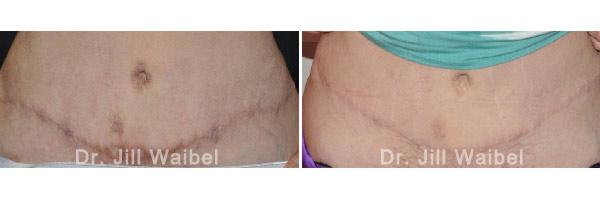 SURGICAL AND COSMETIC SCARS - Before and After Treatments Photos: female (tuck)