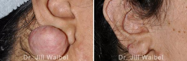 KELOIDS - Before and After Photos: female (ear, side view)
