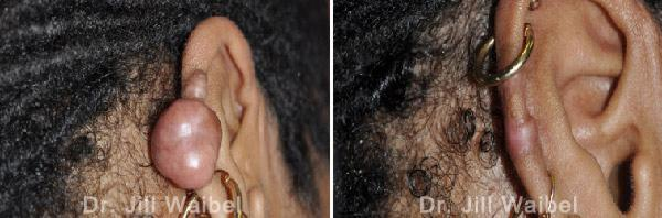 KELOIDS - Before and After Photos: woman (ear, back view)