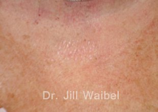 SURGICAL  AND COSMETIC SCARS. After Treatment Photo: neck