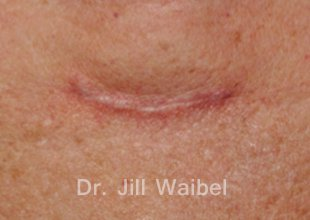 SURGICAL  AND COSMETIC SCARS. Before Treatment Photo: neck