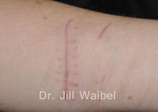 SURGICAL AND COSMETIC SCARS. Before Treatment Photo: hand
