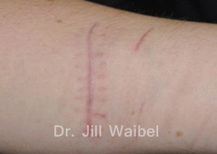 SURGICAL AND COSMETIC SCARS. Before Treatment Photo - hand