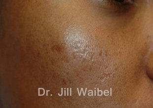 ACNE SCARS: Before Treatment Photo - face (oblique view)