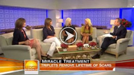 Watch Video: Today Show - The Berns Triplets Scarred by Fire, treated by Dr Jill Waibel