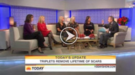 Watch Video: Today Show - Update on the Berns Triplet, treated by Dr. Jill Waibel