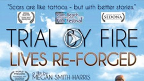 Watch Video: Trial By Fire - Scars are like tattoos - but with better stories