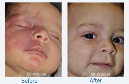 Before and After Treatment Photo: child (frontal view)