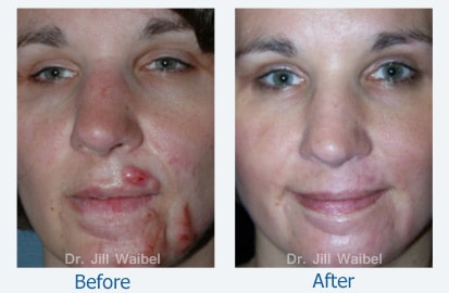 BURN SCARS. Before and After Treatment Photo: female (frontal view)