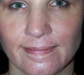 Hypertrophic Scars - After Treatment Photo: female (face, frontal view)