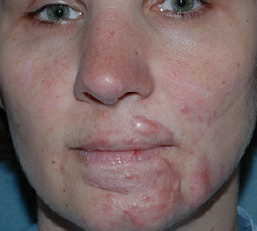 Hypertrophic Scars - Before Treatment Photo: female (face, frontal view)